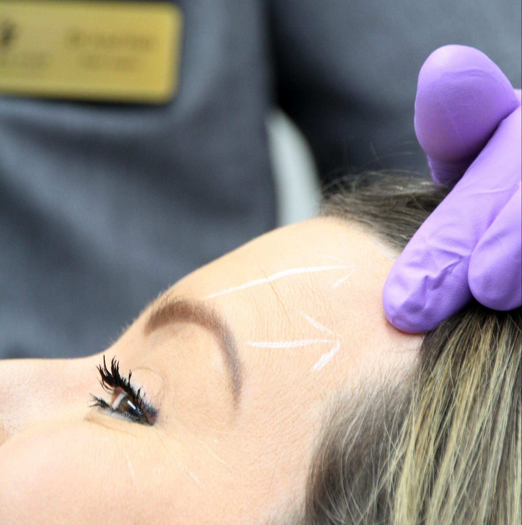 Brows and upper face Dr Ayad Harb