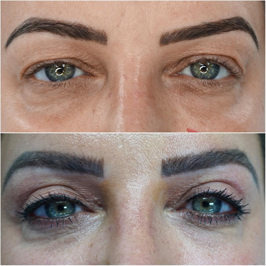 Eyelid Lift Dr Ayad Harb
