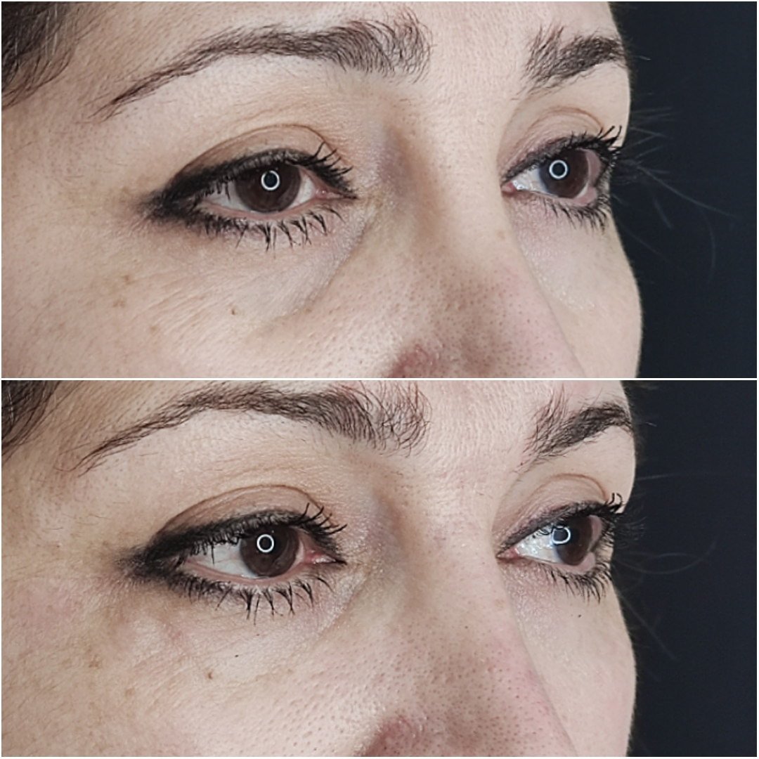 Mid-face, cheeks and eyes Dr Ayad Harb
