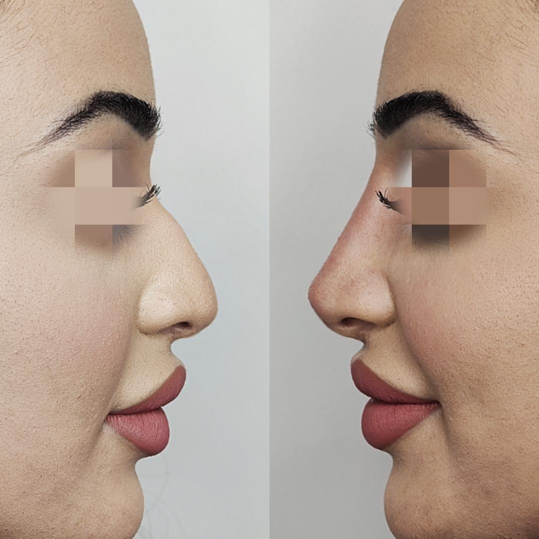 3 Point Rhino Nose Correction Dr Ayad Harb