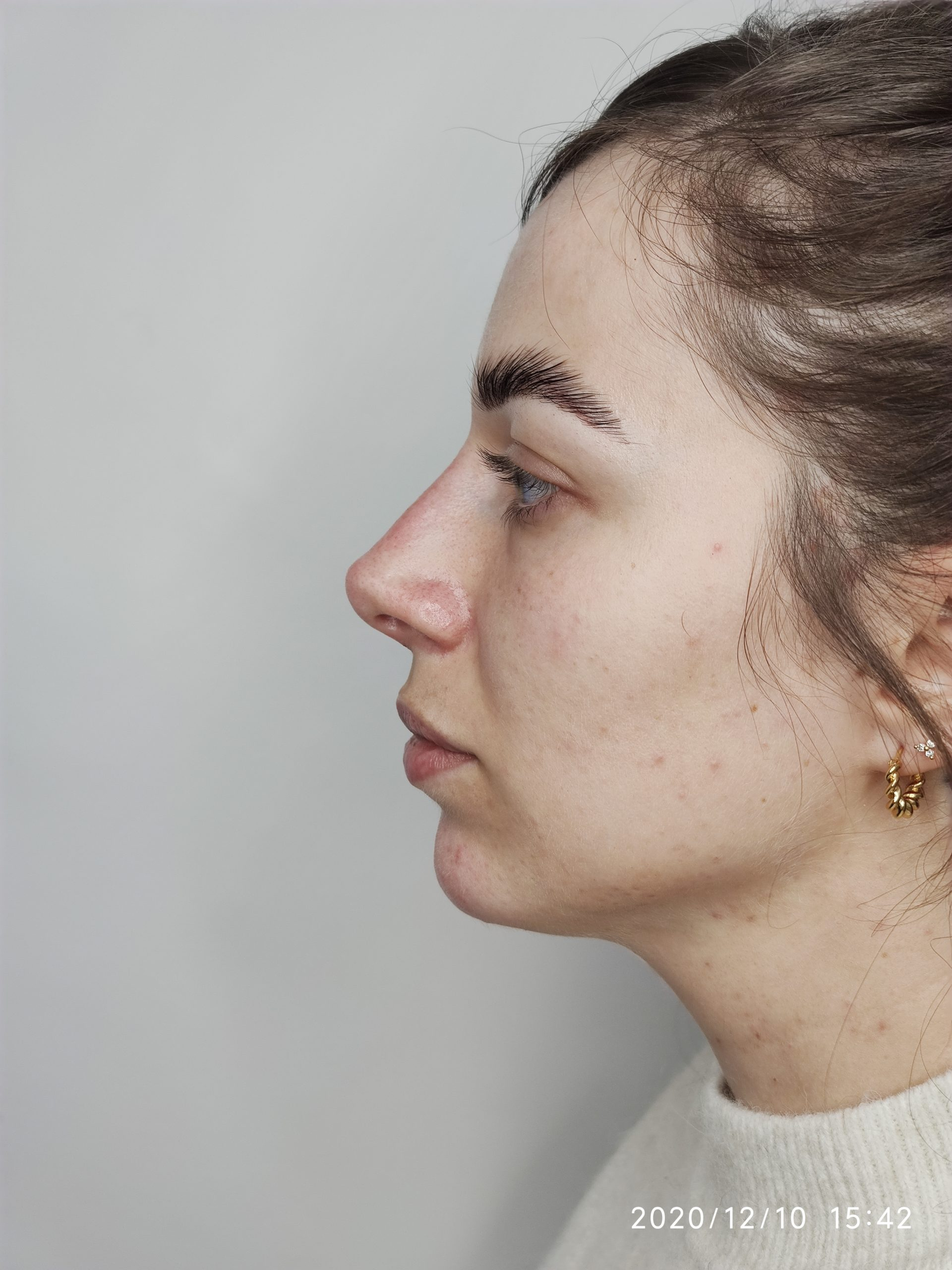 Chin, neck and lower face Dr Ayad Harb