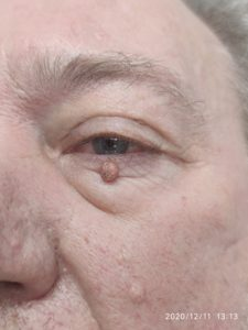 Lumps & bumps Dr Ayad Harb