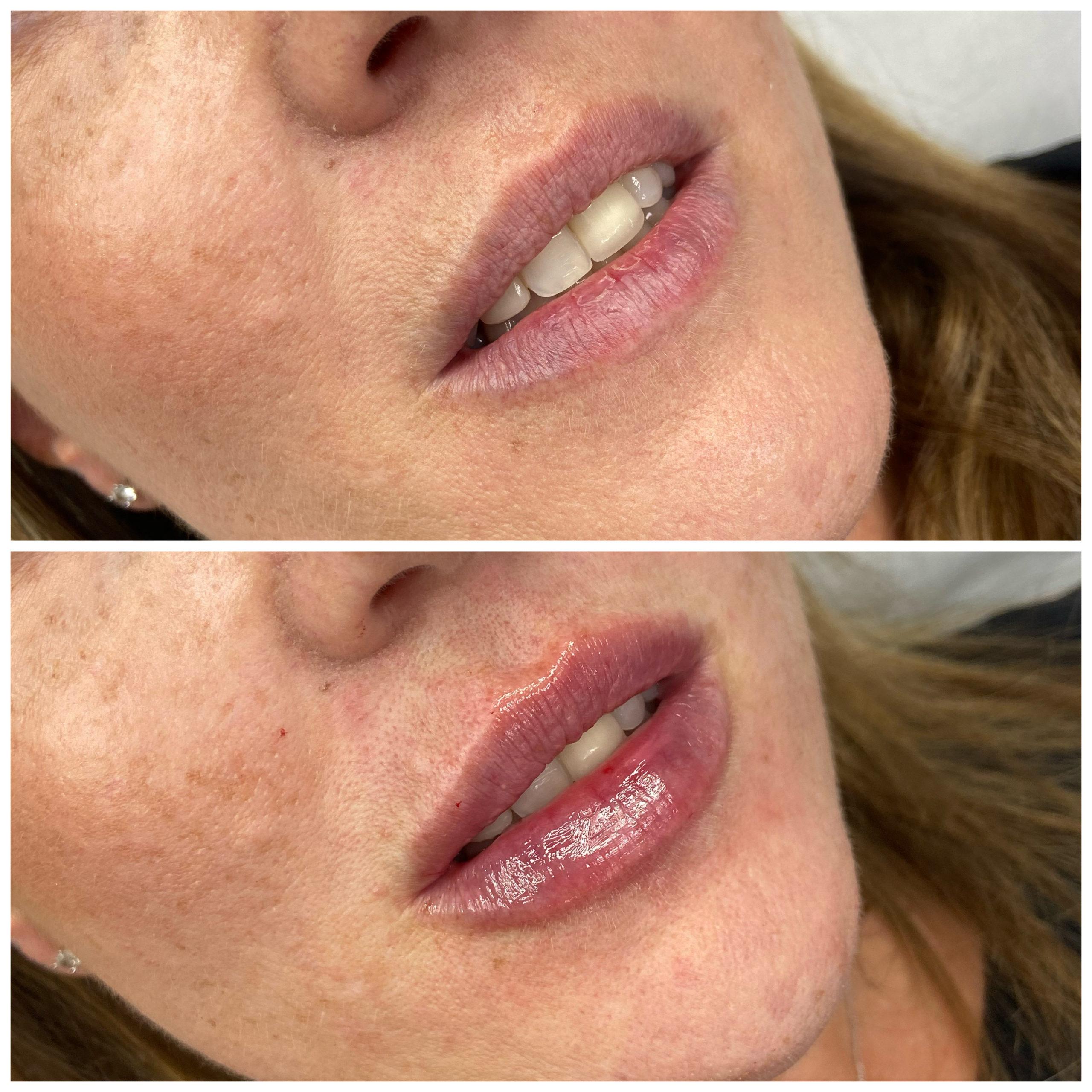 Lip Enhancement Dr Ayad Harb