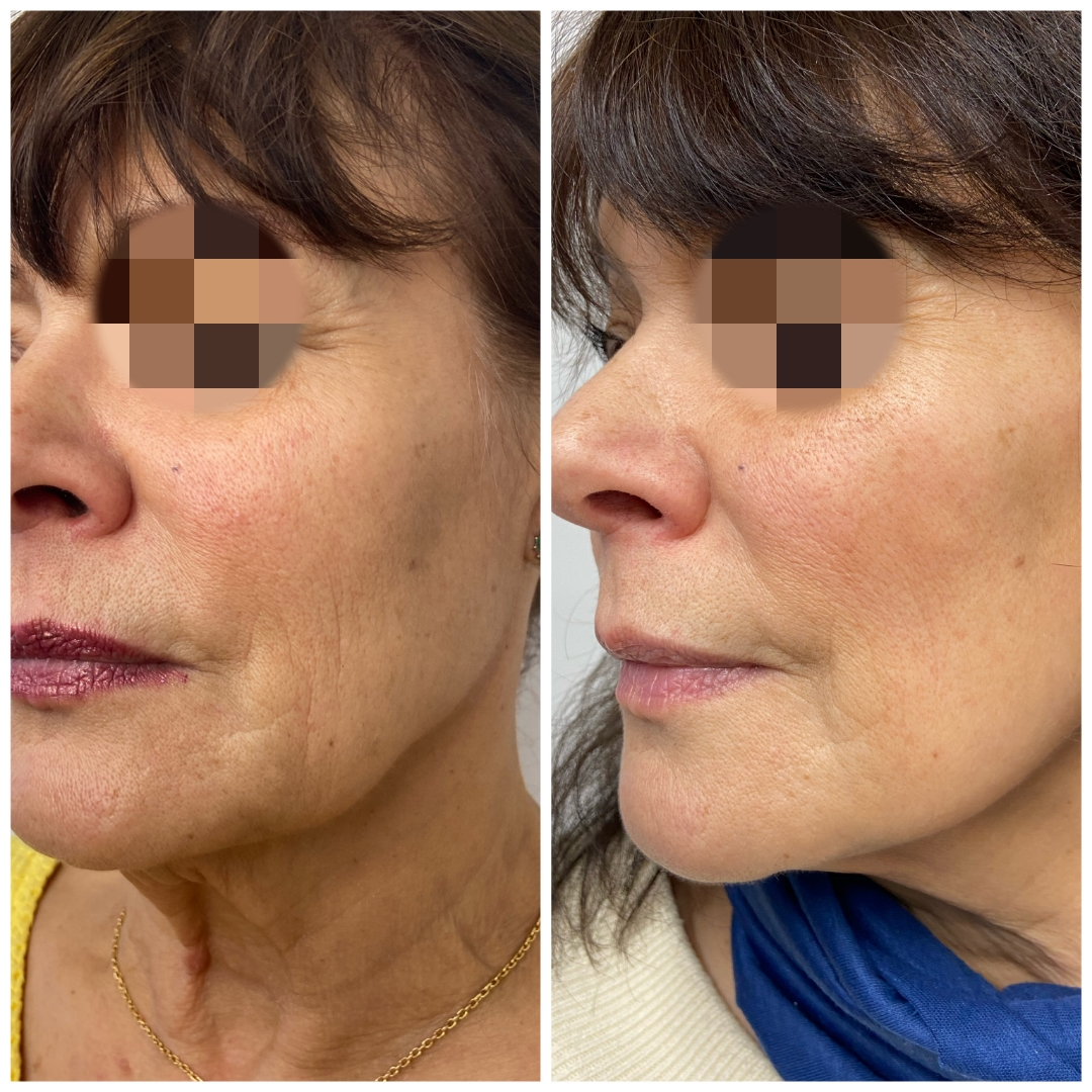 Skin Boosters Dr Ayad Harb